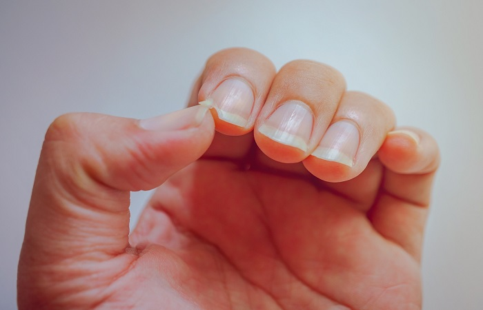 image result for nail break - nail repair