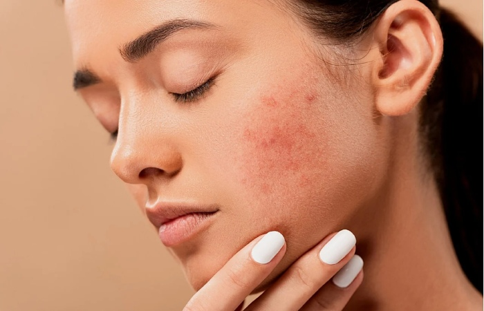 Control acne - CBD for physical health