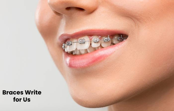 braces write for us