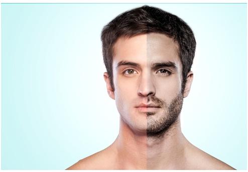 long term result - beard transplant